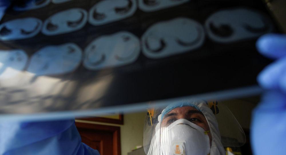 Дарыгер кишинин өпкөсүнүн рентген сүрөтүн карап жатат Архив