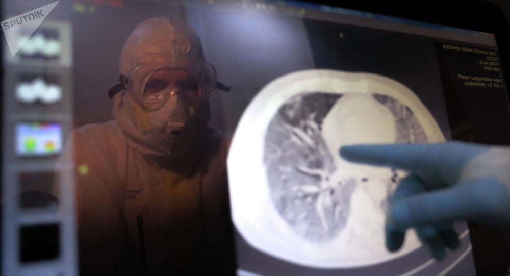 Медициналык кызматкер өпкөнүн томографиялык сүрөтүн карап жатат. Архив