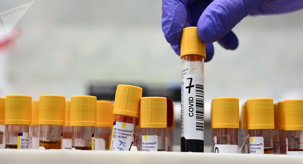Сотрудник лаборатории Научно-исследовательского института скорой помощи имени Н. В. Склифосовского держит контейнеры с биоматериалом для проверки на наличие новой коронавирусной инфекции.