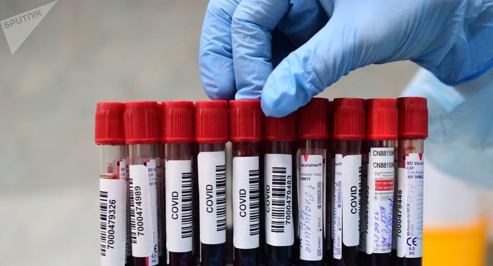 Коронавируска анализ жасоо үчүн алынган үлгүлөр