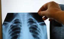 Врач өпкөнүн рентген нуру менен ооруканада. Архив