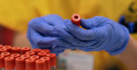 Кандан коронавирусту аныктоо тести. Архивдик сүрөт