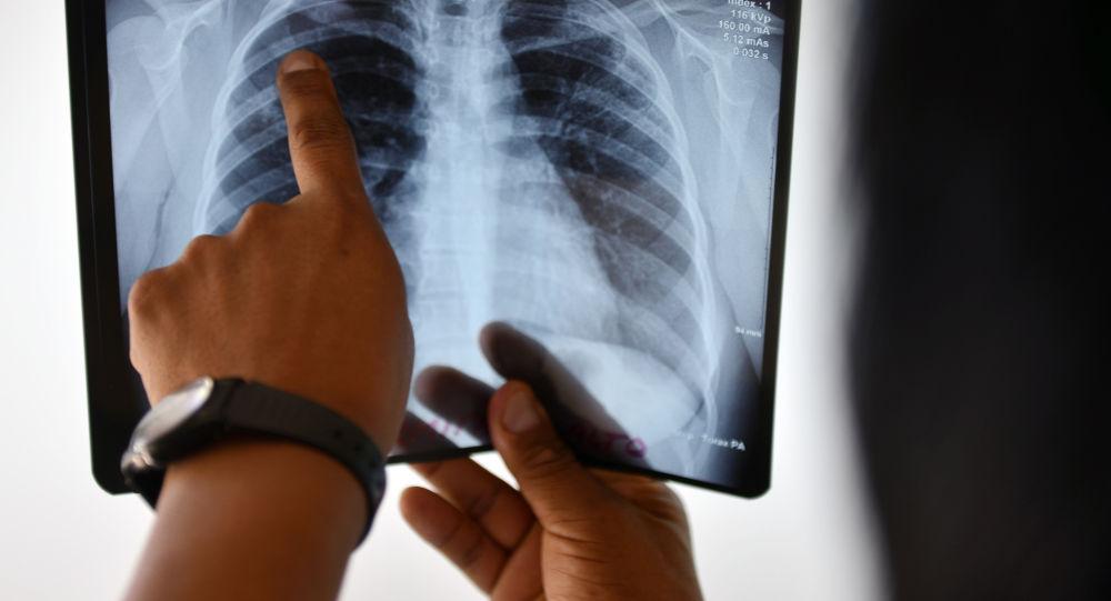 Дарыгер өпкөнүн рентген сүрөтүн карап жатат. Архив